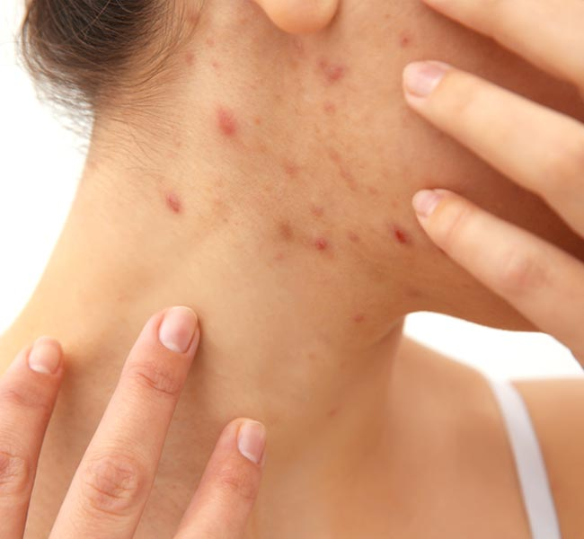 Acne, cicatrici, peel touch