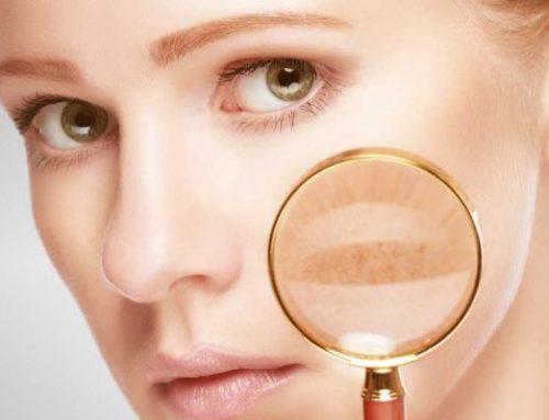 PELLE ARROSSATA POST TRATTAMENTO ESTETICO: Cicatrici, lividi, gonfiori. Che fare?